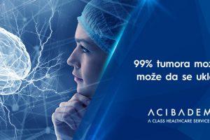 99% tumora mozga može da se ukloni