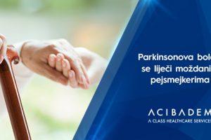 Terapija lijekovima je prva opcija kod liječenja Parkinsonove bolesti