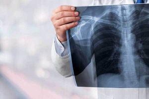 """""""Pametni"""" lijekovi su preuzeli vodeće mjesto u liječenju karcinoma pluća"""